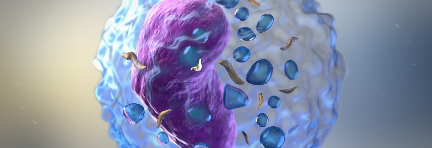 Immune Cells Found in Sjogren's Patients Could Serve as Biomarkers of Other Autoimmune Diseases, Study Suggests