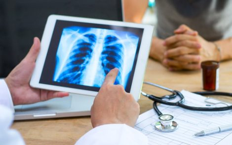 Initial Sjögren's Symptoms May Predict Severity of Lung Complications, Study Suggests