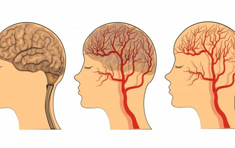 Primary Sjögren's Syndrome May Rarely Manifest as a Stroke, Case Report Shows