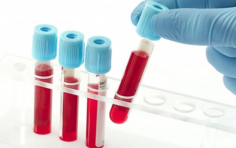 Researchers Discover Two Potential Biomarkers for Primary Sjögren's Syndrome